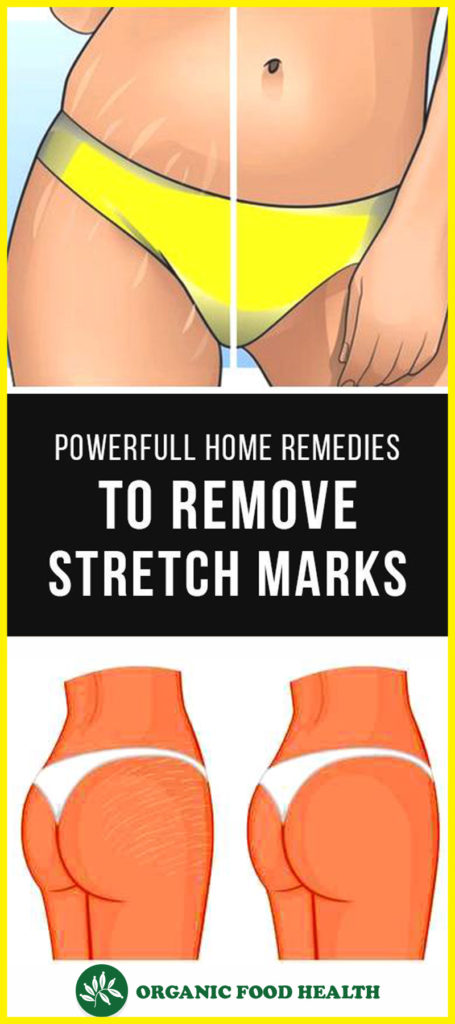 Stretch Marks- Helpful Homemade Recipes