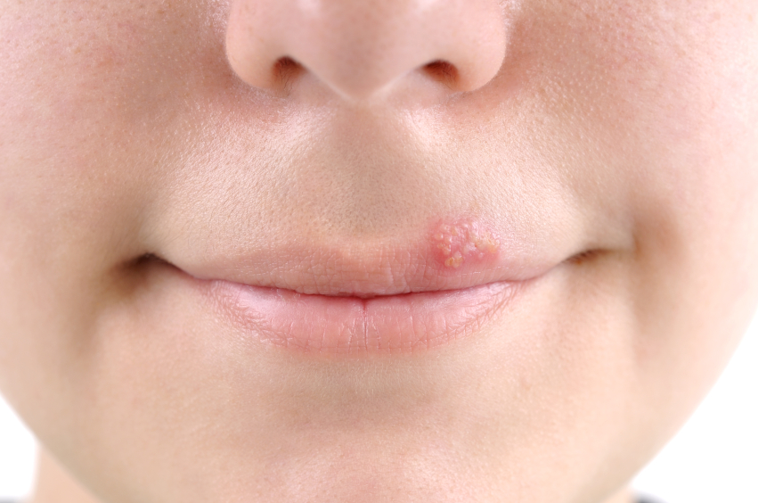 Herpes and Types of Herpes