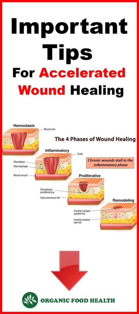 Important Tips For Accelerated Wound Healing.