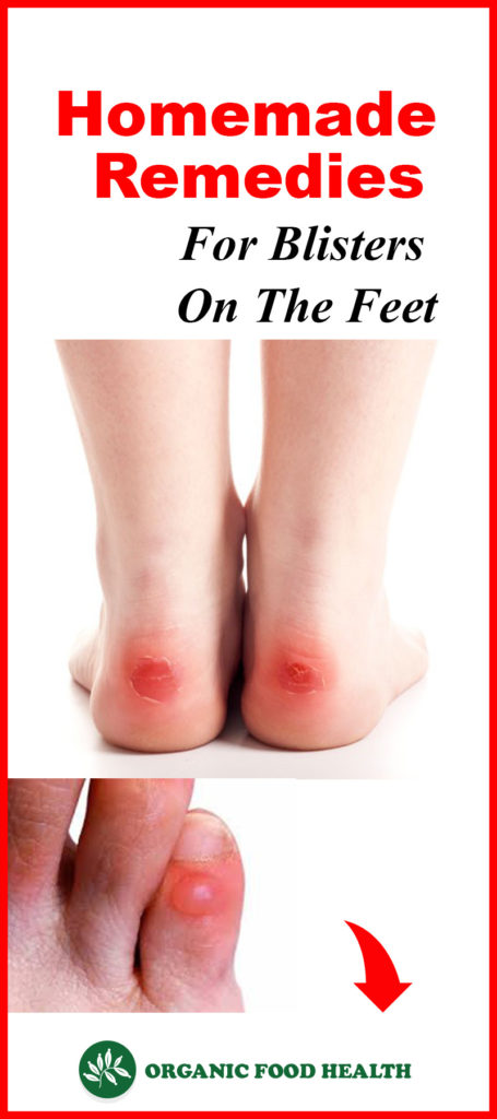 Homemade Remedies For Blisters On The Feet